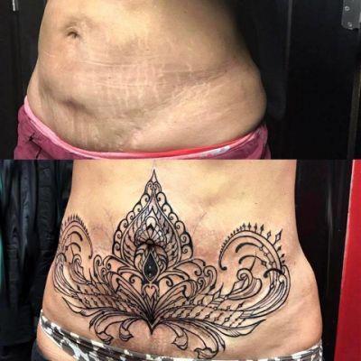 tummy tuck scar tattoo cover up ideas